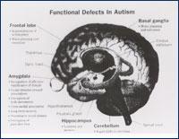 Autismus partnersuche
